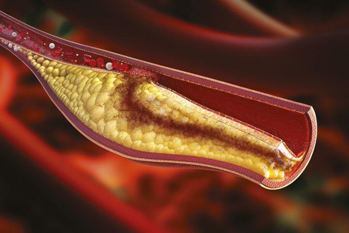 Holesterīns – novēršams drauds sirdsveselībai