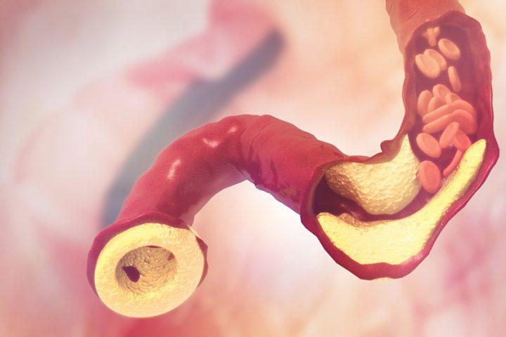 Kā pasargāt asinsvadus noaugstaholesterīna?